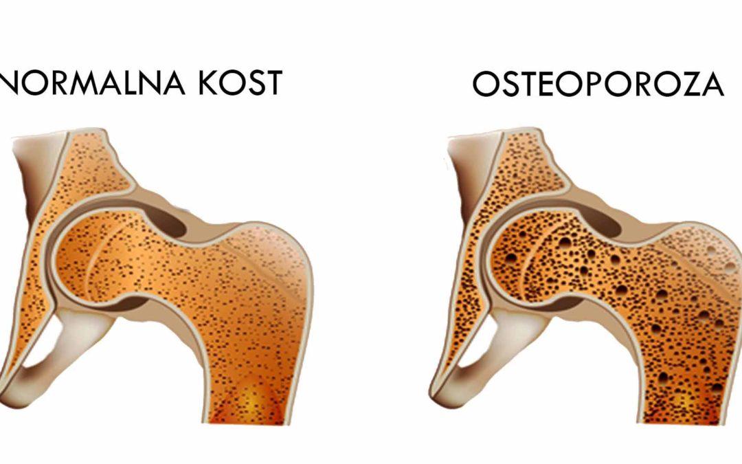 Osteopenija predstopnja osteoporoze?